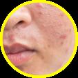 Přínosy fototerapie - dermatologie